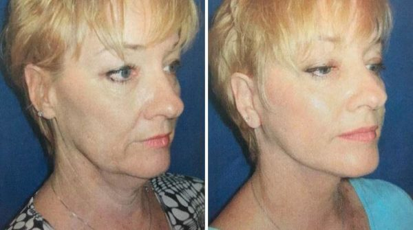 Lower Eyelid Lift Before & After Wall Township