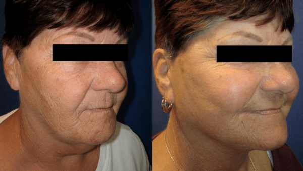 Facelift Surgery Wall Township